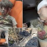 Omran, a four-year-old Syrian boy covere